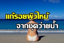 How To วิธีแก้รอยผิวไหม้จากชุดว่ายน้ำ หลังกลับจากทะเล บำรุงยังไงดี?