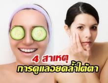 4 สาเหตุ และ การดูแลรักษารอยคล้ำใต้ตา