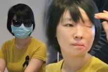 ศัลยแพทย์ไทยเจ๋ง พลิกชีวิตให้กับ นศ.พยาบาลชาวเวียดนามโดนน้ำกรดสาด