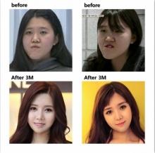 ศัลยกรรมเปลี่ยนใบหน้า เพียง3เดือนเปลี่ยนไปเป็นคนละคน!!