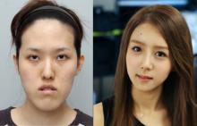 ศัลยกรรมเกาหลี การเสริมจมูกเทคนิคเกาหลี